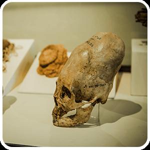 Deformed Skull at Ica Museum
