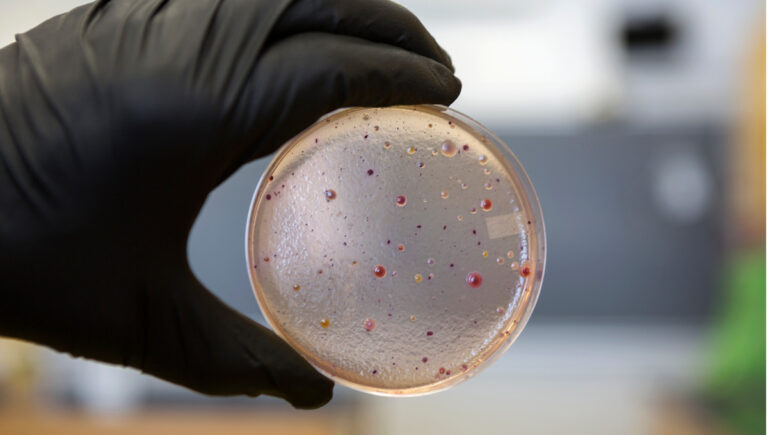 Study finds HUS caused by E. coli infections often more severe in adults