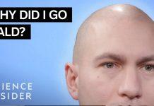 Why-Some-Men-Go-Bald